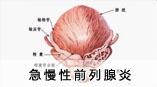 急慢性前列腺炎