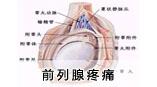 前列腺疼痛